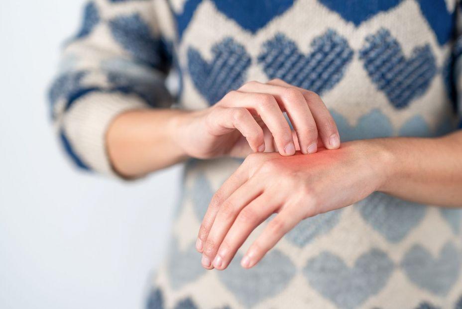 ¿Se puede ser alérgico al frío? ¿Y al calor? FOTO: Bigstock